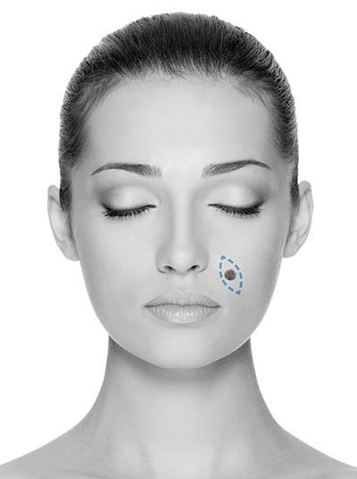 estetska-dermatokirurgija