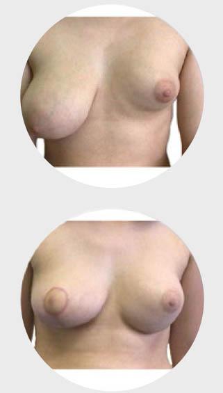 estetska-dojke-asimetrija
