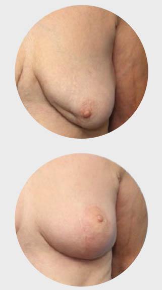 estetska-dojke-operacije