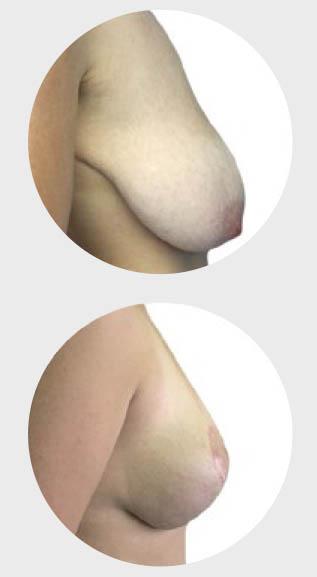 estetska-dojke-podizanje