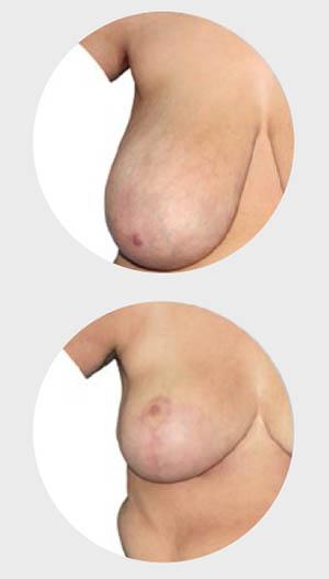 estetska-dojke-smanjenje