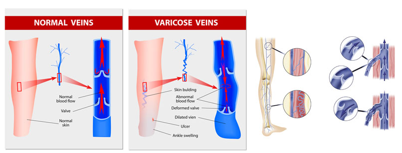 Varicose vein forms in a leg. Normal vein and varicose vein. Vector